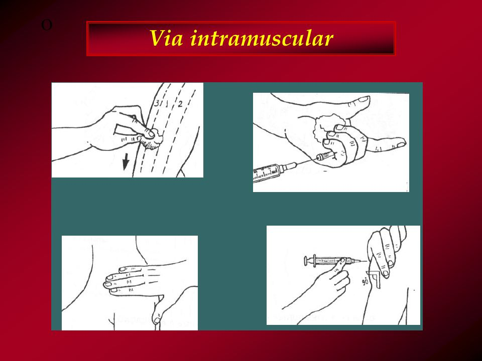 O Via intramuscular