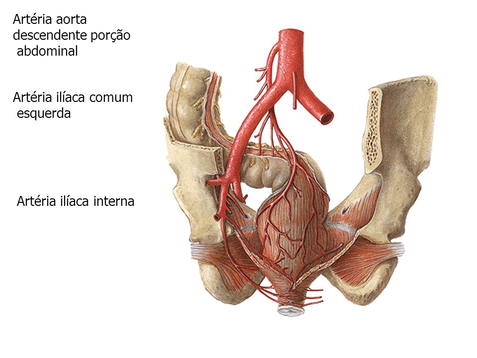 Artéria aorta descendente porção. abdominal. Artéria ilíaca externa. Artéria ilíaca comum. esquerda.