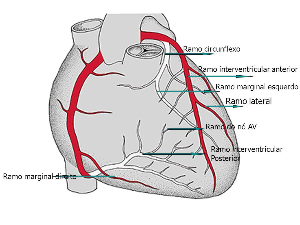 Ramo lateral Ramo circunflexo Ramo interventricular anterior