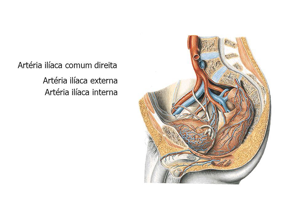 Artéria ilíaca comum direita