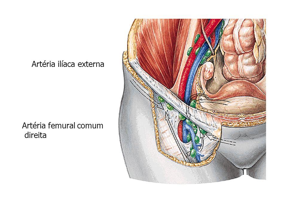Artéria ilíaca externa