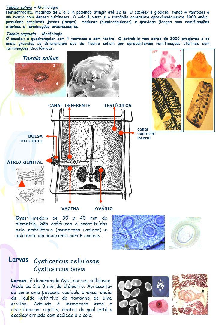 Cysticercus cellulosae Cysticercus bovis