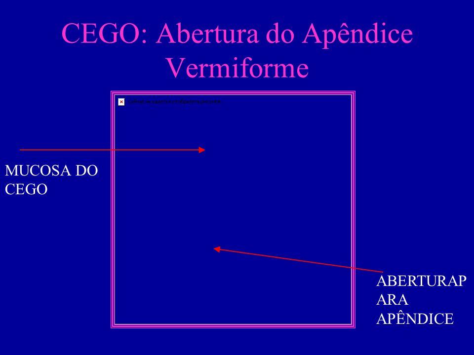 CEGO: Abertura do Apêndice Vermiforme