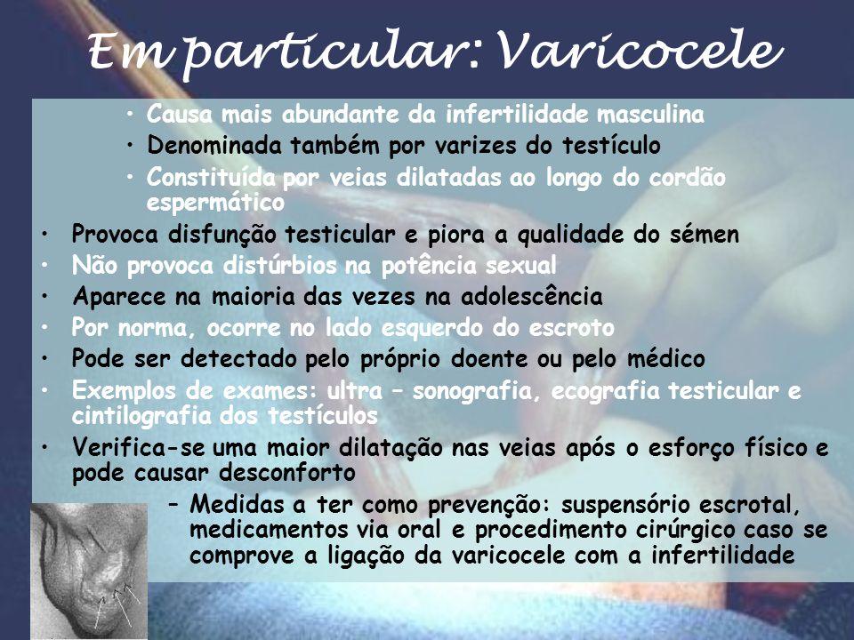 Em particular: Varicocele