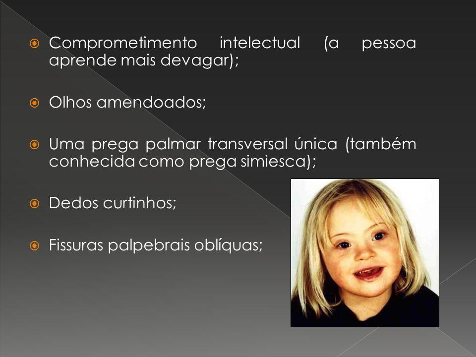 Comprometimento intelectual (a pessoa aprende mais devagar);