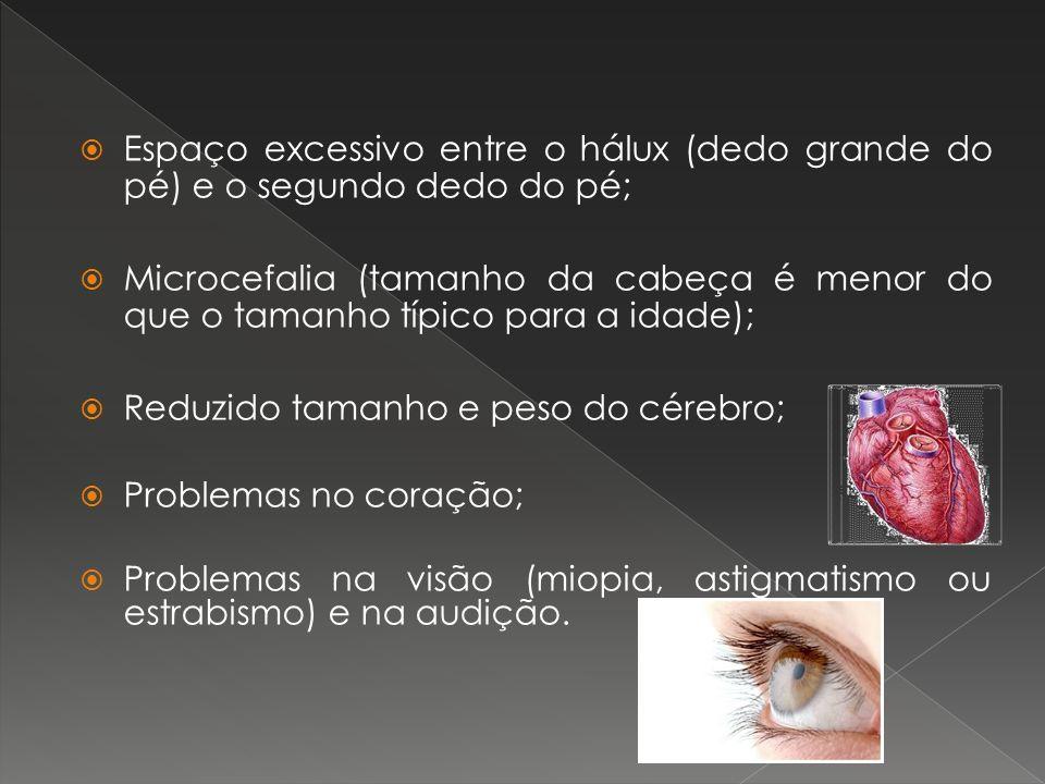 Espaço excessivo entre o hálux (dedo grande do pé) e o segundo dedo do pé;