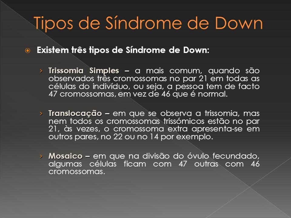 Tipos de Síndrome de Down