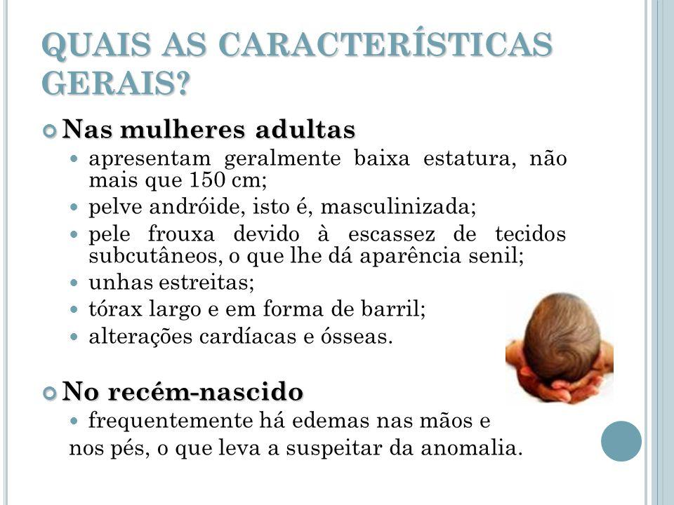 QUAIS AS CARACTERÍSTICAS GERAIS