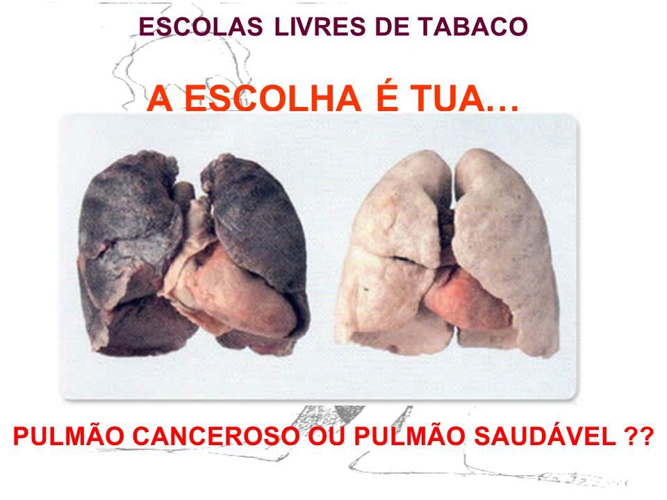ESCOLAS LIVRES DE TABACO A ESCOLHA É TUA…