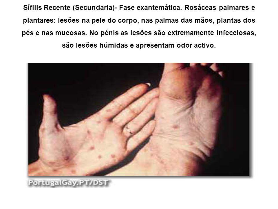 Sífilis Recente (Secundaria)- Fase exantemática