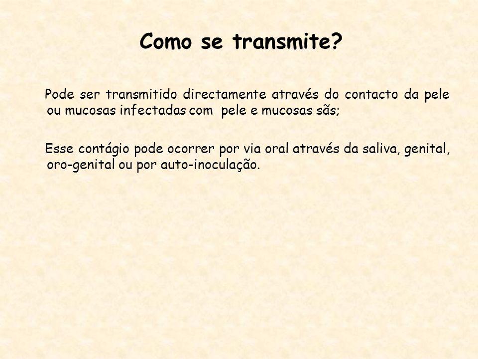 Como se transmite Pode ser transmitido directamente através do contacto da pele ou mucosas infectadas com pele e mucosas sãs;