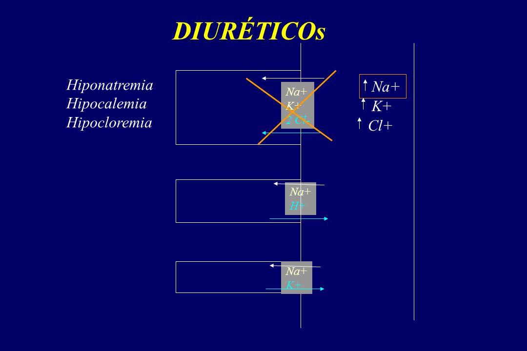 DIURÉTICOs Hiponatremia Na+ Hipocalemia Hipocloremia K+ Cl+ Na+ K+
