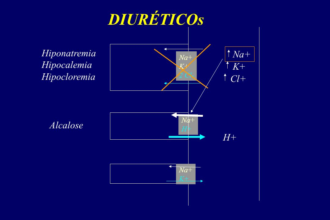 DIURÉTICOs Hiponatremia Na+ Hipocalemia Hipocloremia K+ Cl+ Alcalose
