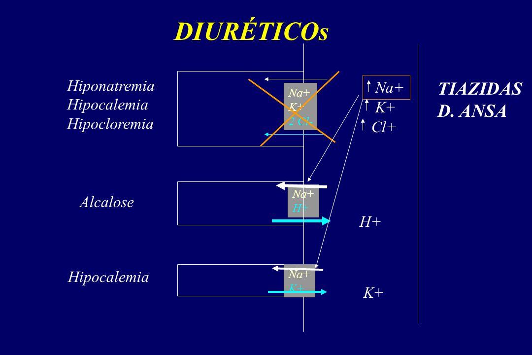 DIURÉTICOs TIAZIDAS D. ANSA Hiponatremia Na+ Hipocalemia Hipocloremia