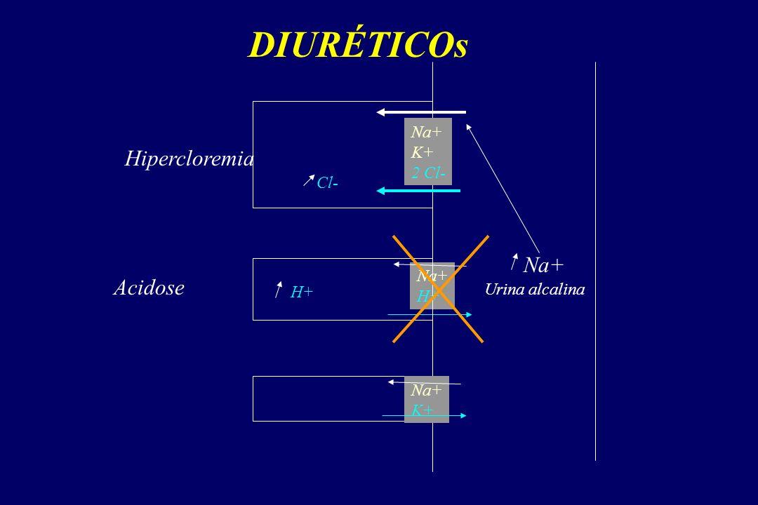 DIURÉTICOs Hipercloremia Na+ Acidose Na+ K+ 2 Cl- Cl- Na+ H+