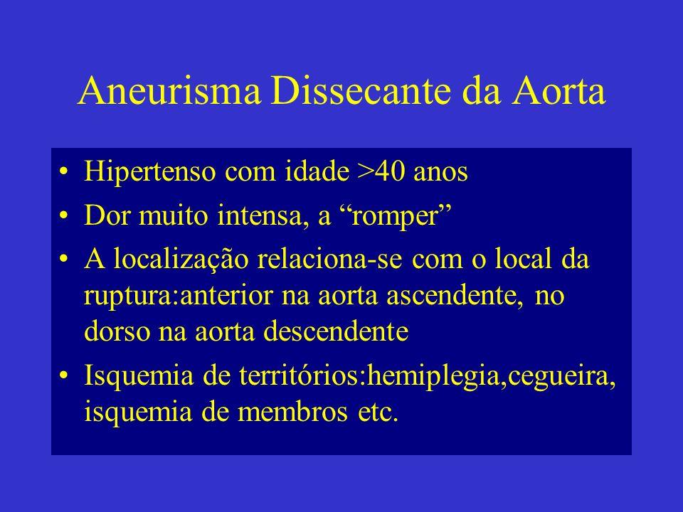 Aneurisma Dissecante da Aorta