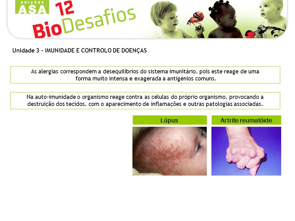 Lúpus Artrite reumatóide