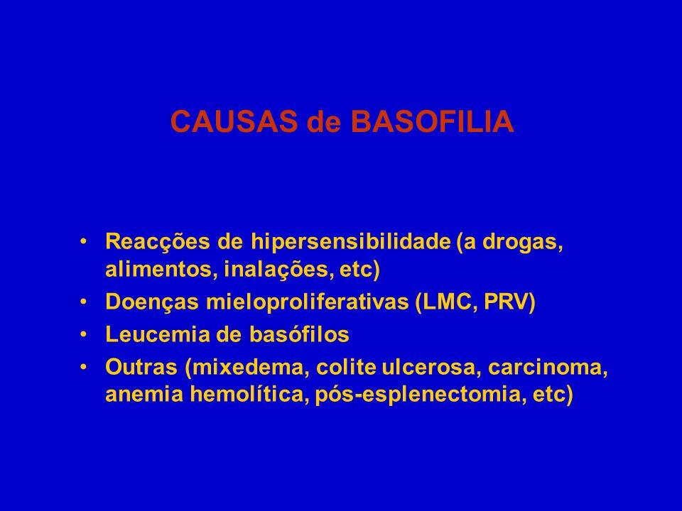 CAUSAS de BASOFILIA Reacções de hipersensibilidade (a drogas, alimentos, inalações, etc) Doenças mieloproliferativas (LMC, PRV)