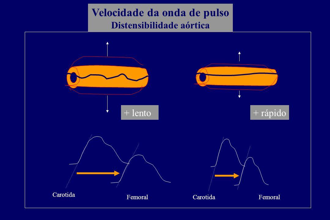 Velocidade da onda de pulso Distensibilidade aórtica