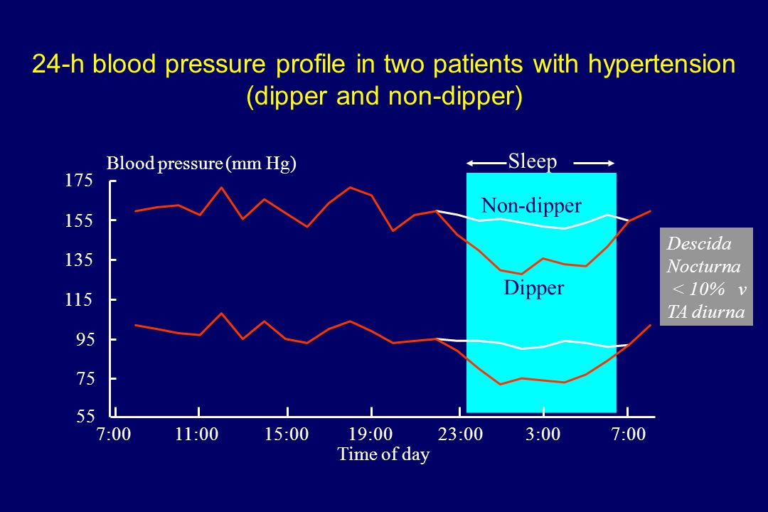 24-h blood pressure profile in two patients with hypertension (dipper and non-dipper)