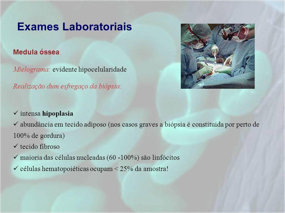 Exames Laboratoriais Medula óssea