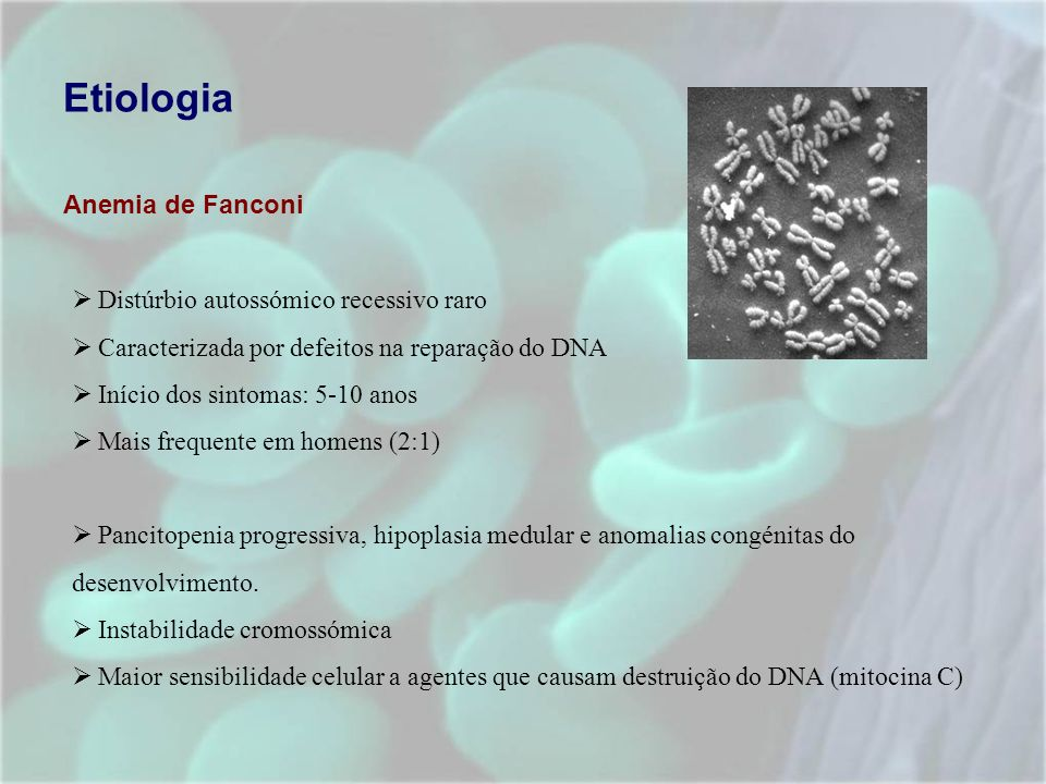 Etiologia Anemia de Fanconi Distúrbio autossómico recessivo raro