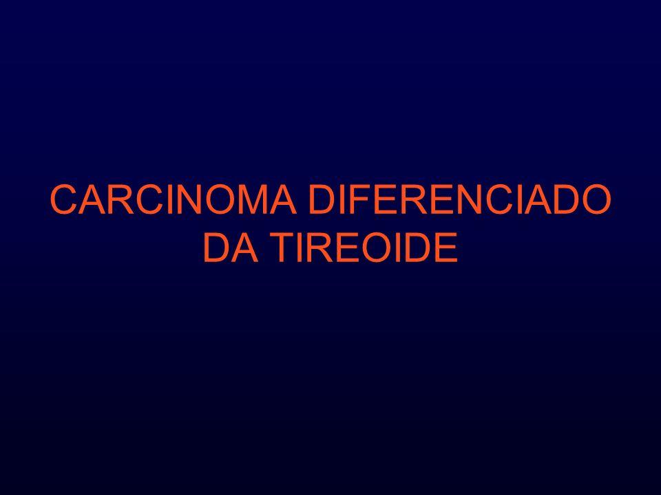 CARCINOMA DIFERENCIADO DA TIREOIDE