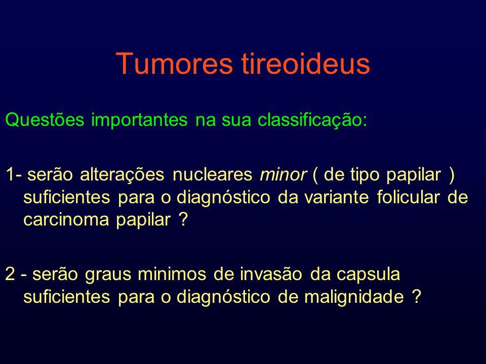 Tumores tireoideus Questões importantes na sua classificação: