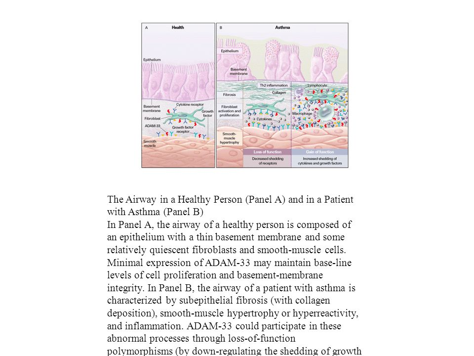 The Airway in a Healthy Person (Panel A) and in a Patient with Asthma (Panel B)