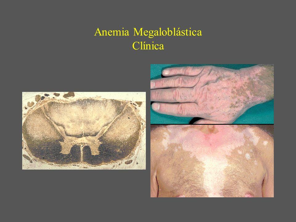 Anemia Megaloblástica Clínica