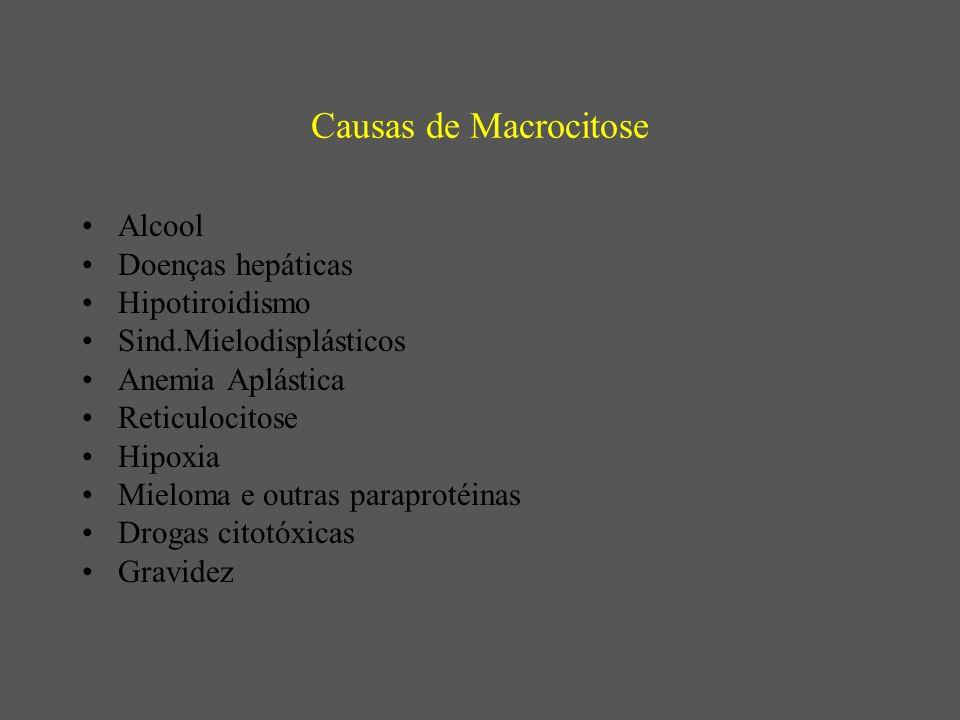 Causas de Macrocitose Alcool Doenças hepáticas Hipotiroidismo