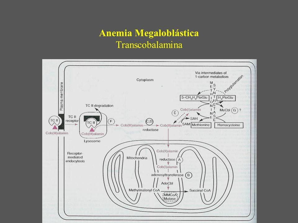 Anemia Megaloblástica Transcobalamina