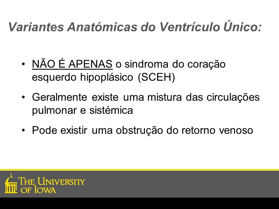 Variantes Anatómicas do Ventrículo Único:
