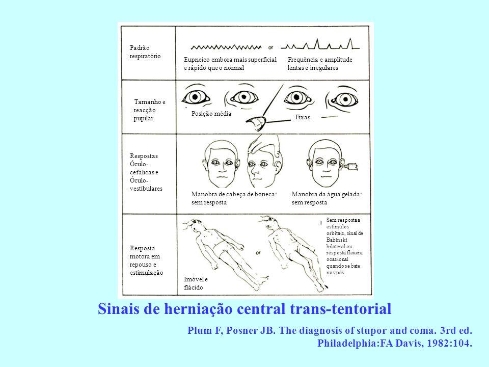 Sinais de herniação central trans-tentorial