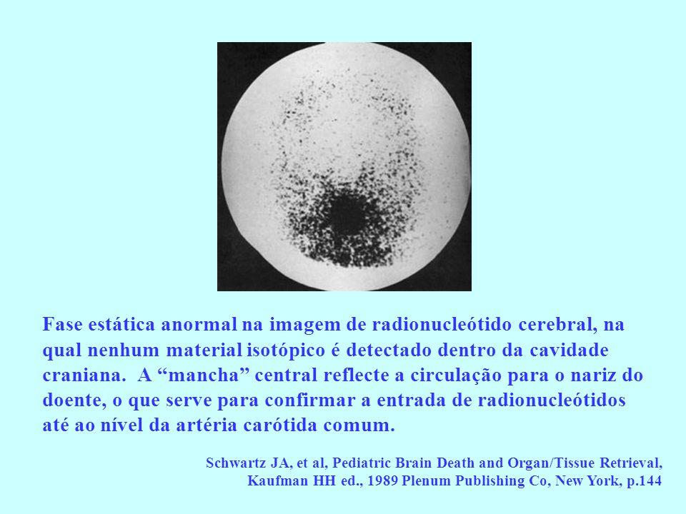 Fase estática anormal na imagem de radionucleótido cerebral, na qual nenhum material isotópico é detectado dentro da cavidade craniana. A mancha central reflecte a circulação para o nariz do doente, o que serve para confirmar a entrada de radionucleótidos até ao nível da artéria carótida comum.