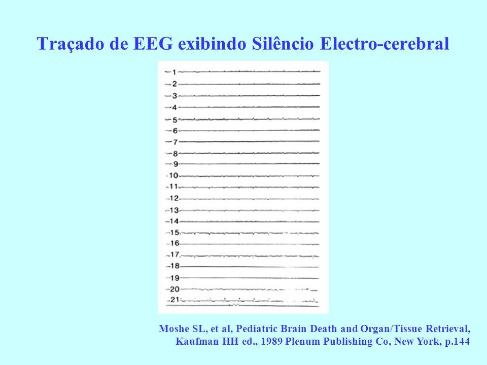 Traçado de EEG exibindo Silêncio Electro-cerebral