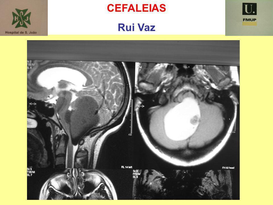 CEFALEIAS Rui Vaz