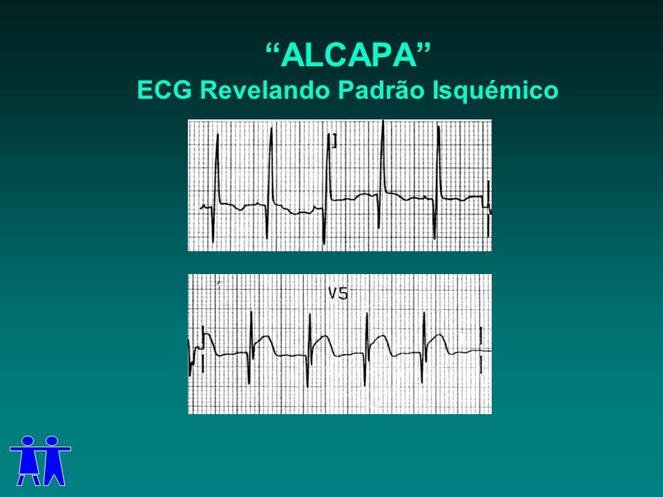 ALCAPA ECG Revelando Padrão Isquémico