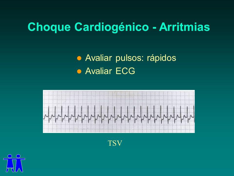 Choque Cardiogénico - Arritmias