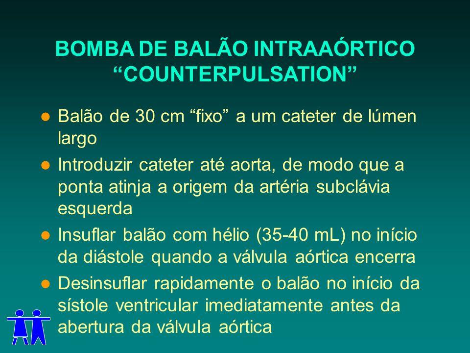 BOMBA DE BALÃO INTRAAÓRTICO COUNTERPULSATION