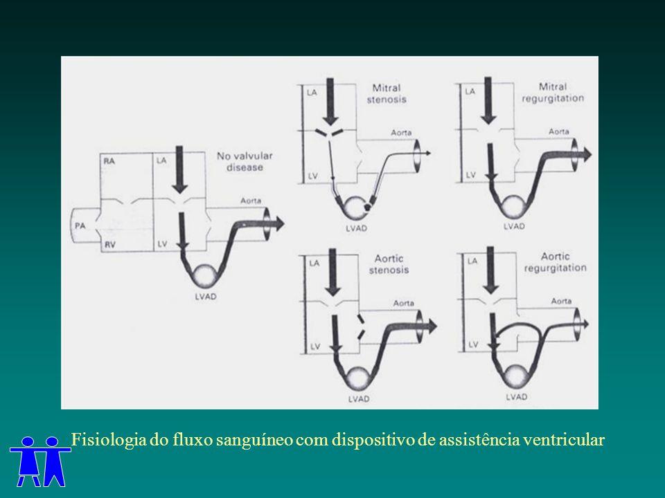 Fisiologia do fluxo sanguíneo com dispositivo de assistência ventricular