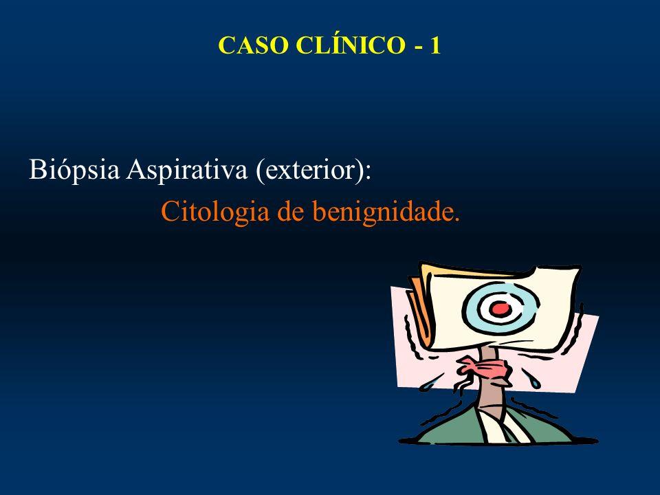 Biópsia Aspirativa (exterior): Citologia de benignidade.