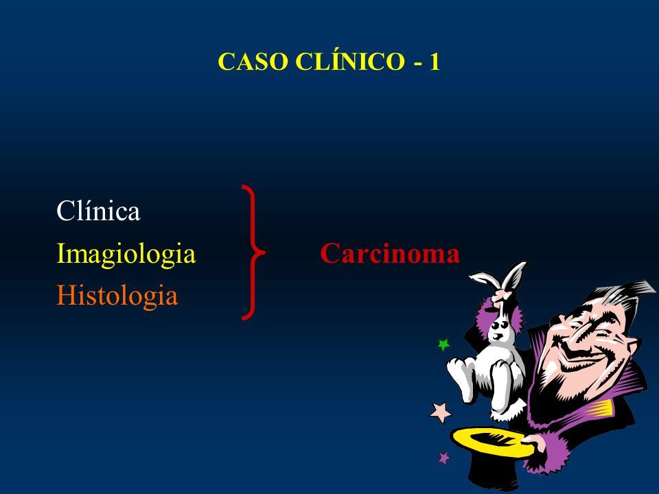 Imagiologia Carcinoma Histologia