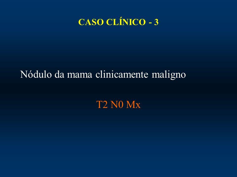 Nódulo da mama clinicamente maligno T2 N0 Mx