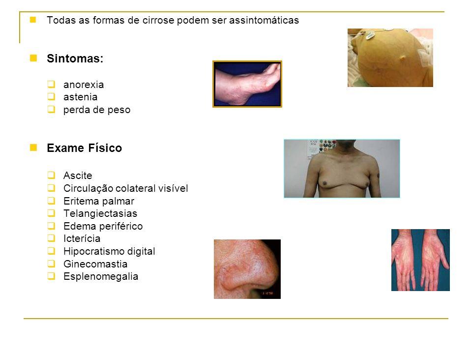 Sintomas: Exame Físico