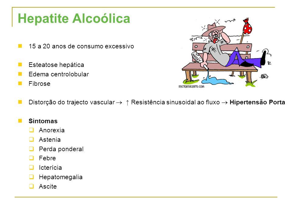Hepatite Alcoólica 15 a 20 anos de consumo excessivo