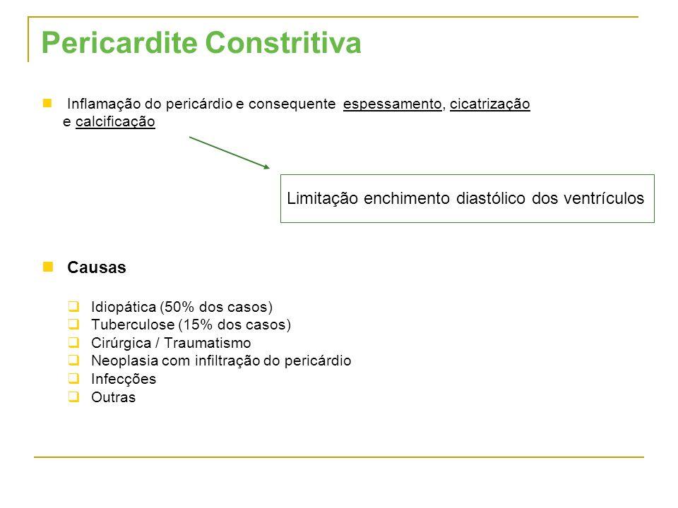 Pericardite Constritiva