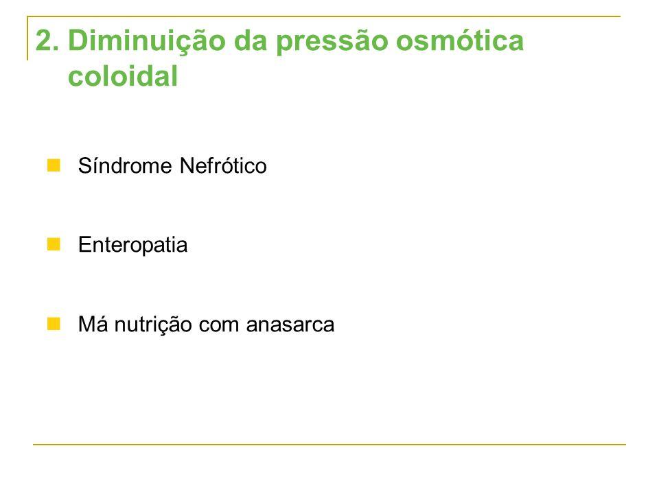 2. Diminuição da pressão osmótica coloidal