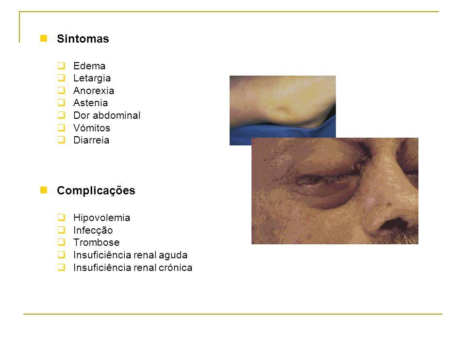 Sintomas Complicações Edema Letargia Anorexia Astenia Dor abdominal