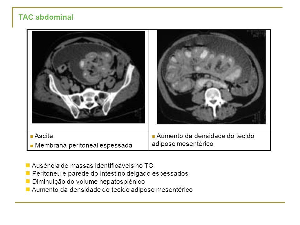 TAC abdominal Ascite Membrana peritoneal espessada